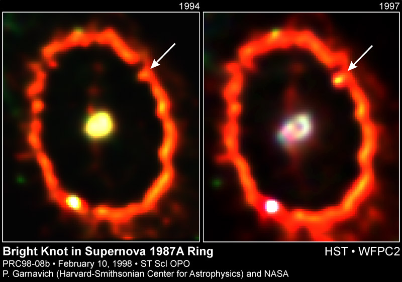 Shocked by Supernova 1987A